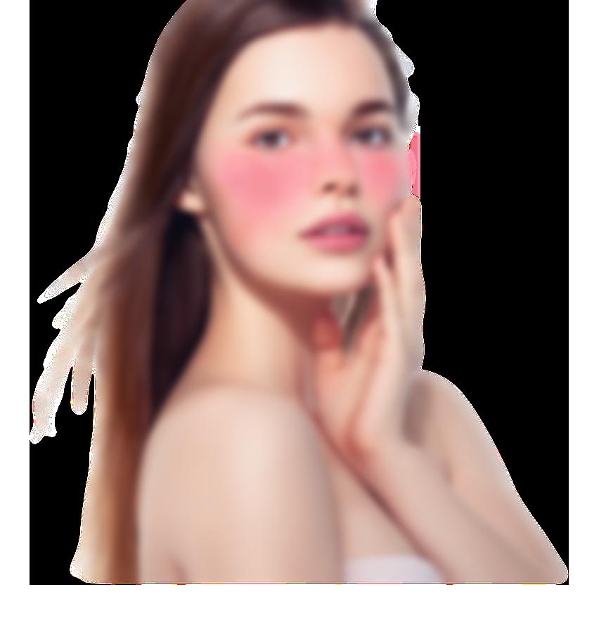 홍조피부 모델 이미지